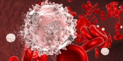 أعراض سرطان الدم وأسبابه وطرق علاجه