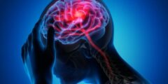 أعراض الجلطة الدماغية عند الشباب وعلاجها