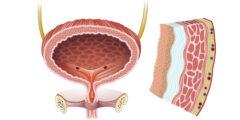اسباب التهاب جدار المثانة