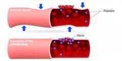 علاج التخثر في الرئة بالأعشاب