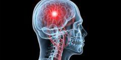 هل تؤثر الجلطة الدماغية على العقل