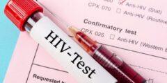 كم يستغرق تحليل الايدز في المختبر؟