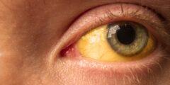 اسباب اصفرار العين والوجه