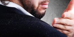 علاج قشرة الوجه عند الرجال